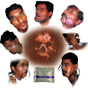 Chewing Tobacco Effects On Face